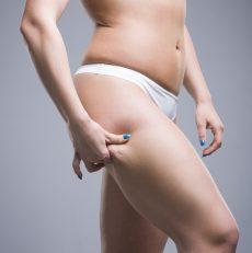 Lipofilling, czyli autotransplantacja tkanki tłuszczowej. Na czym to polega?